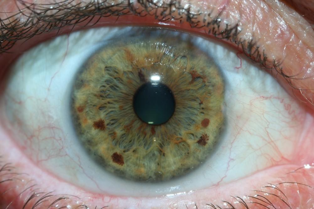 iridology images 20