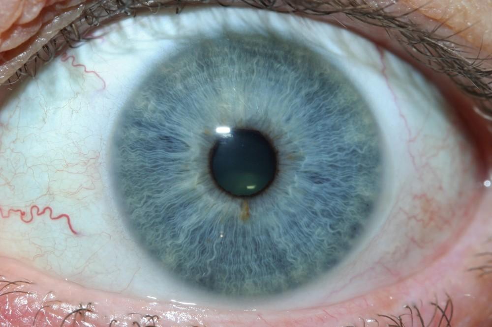 iridology images 22