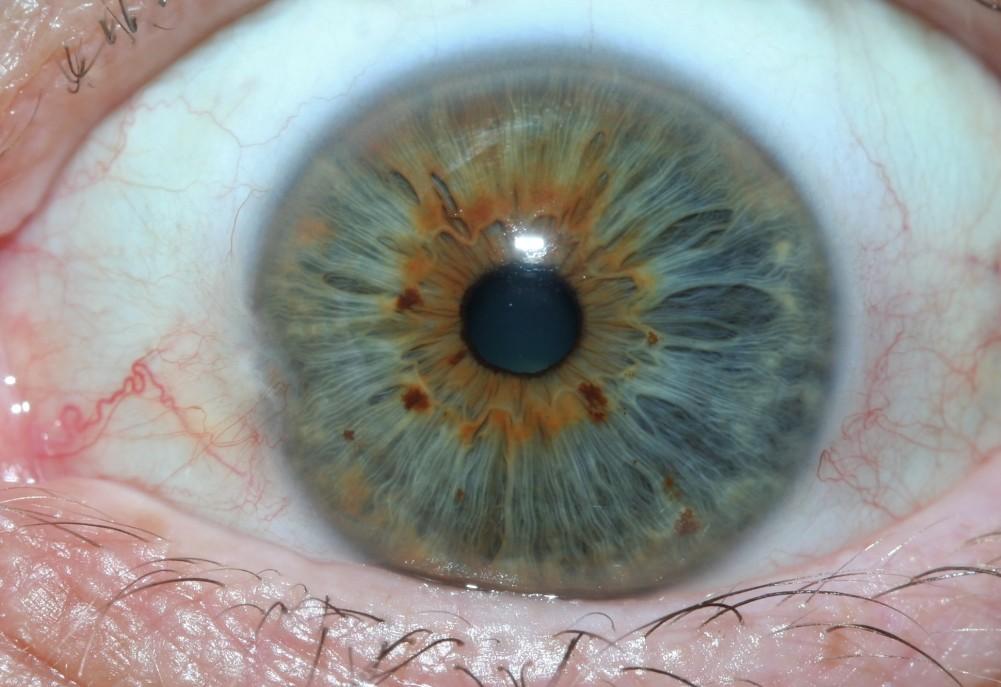iridology images 23