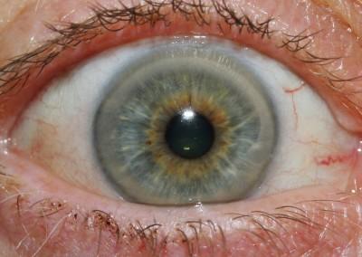iridology images 24