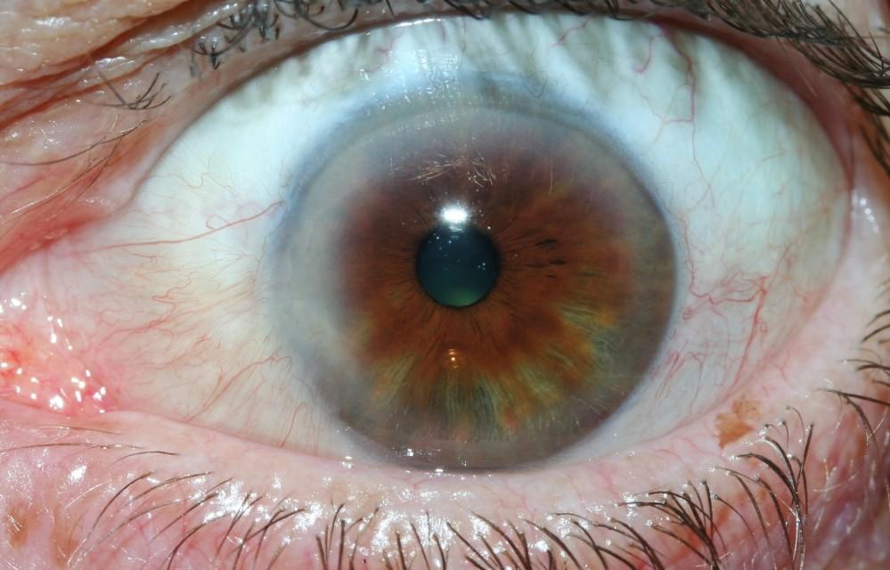 iridology images 25