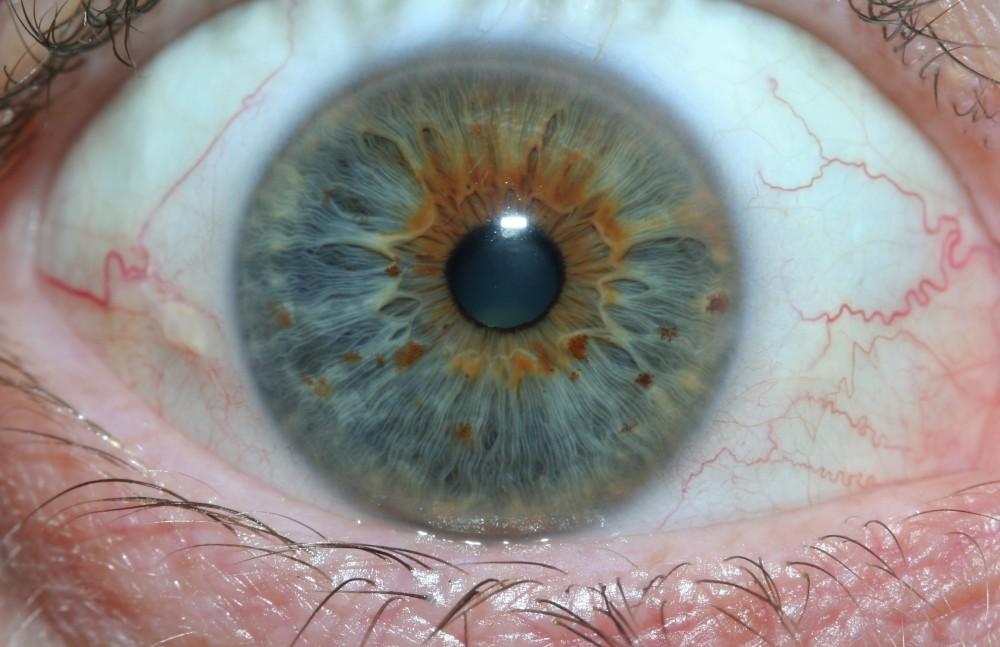 iridology images 26