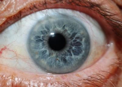 iridology images 27