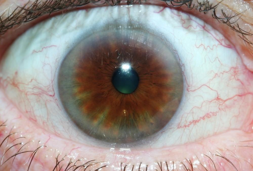 iridology images 28