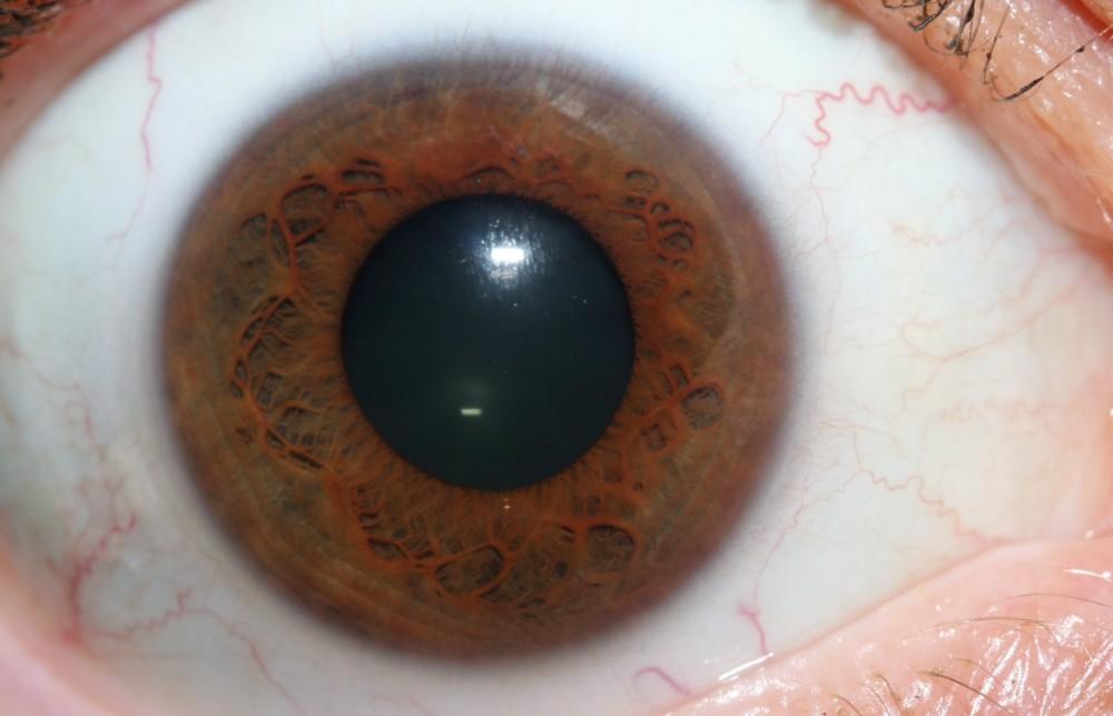 iridology images 29