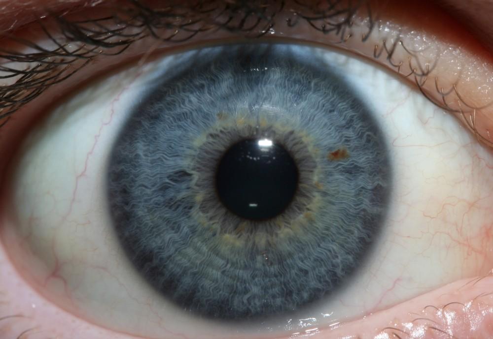 iridology images 3