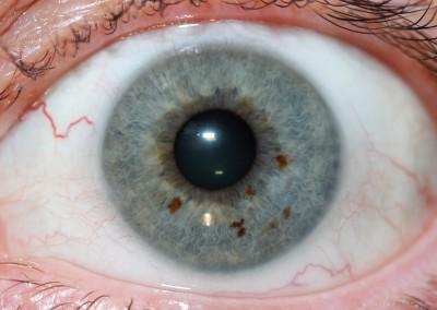 iridology images 30