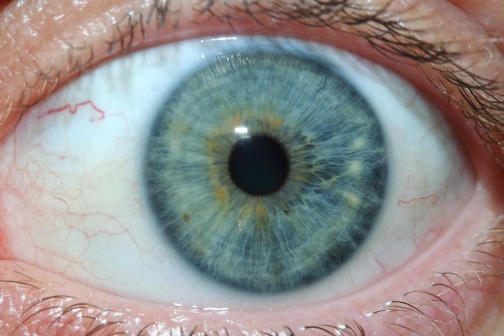 iridology images 31