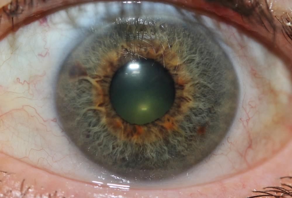 iridology images 32