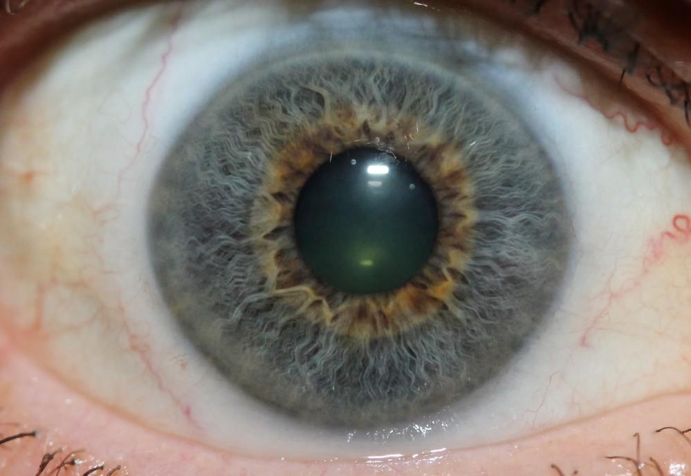 iridology images 33