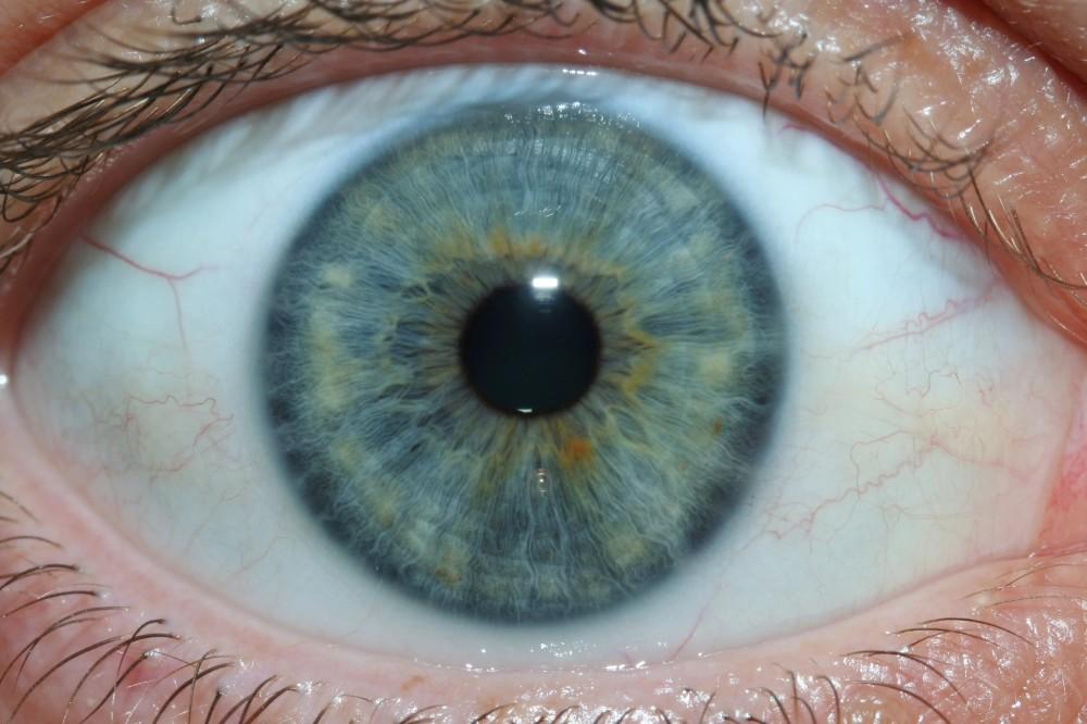 iridology images 4