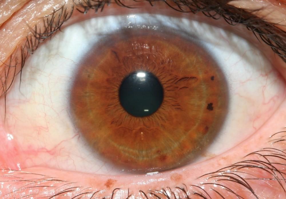 iridology images 5