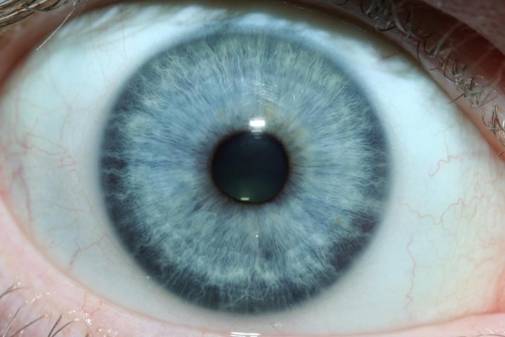 iridology images 7