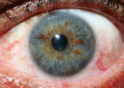 iridology images 9