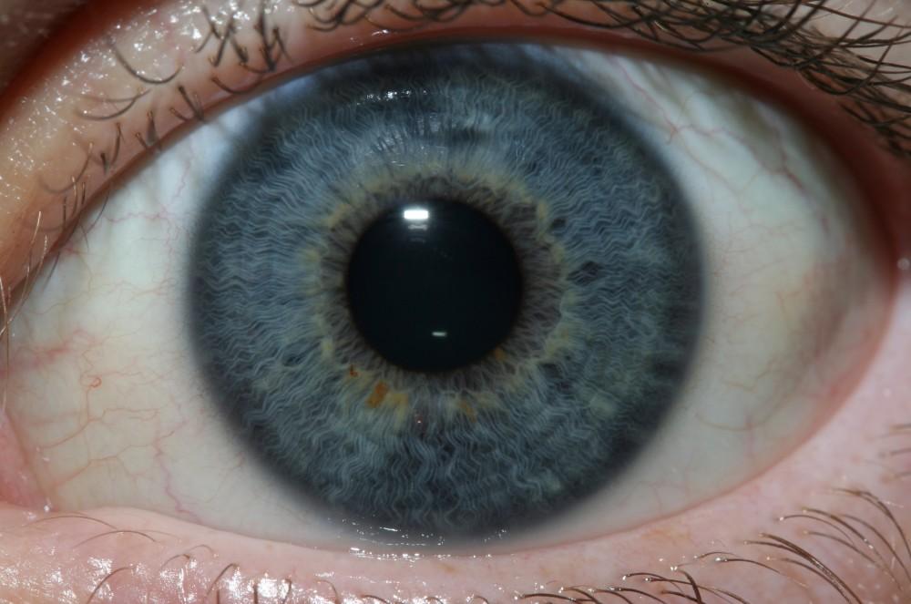 iridology images