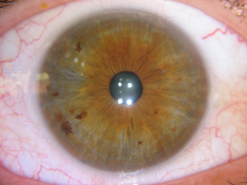 iridology liver Case Reading 3