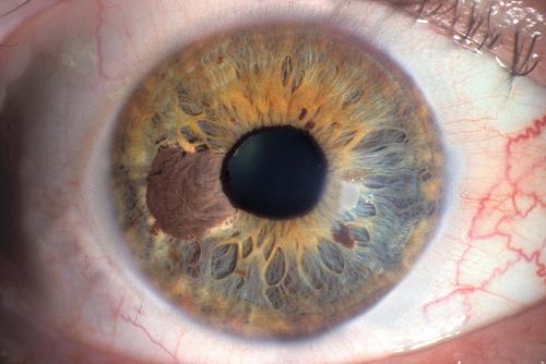 iridology liver Case Reading 4