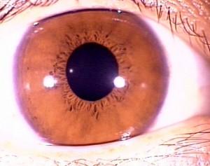 iridology pictures (10)