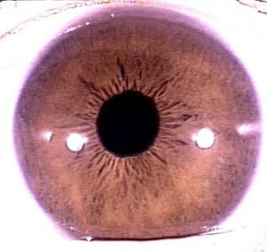 iridology pictures (11)