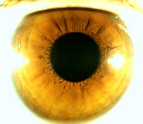 iridology pictures (12)