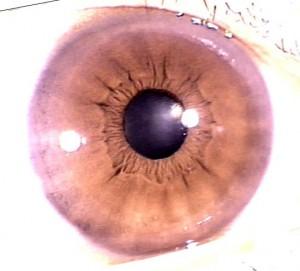 iridology pictures (18)