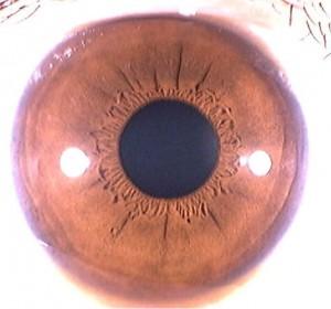iridology pictures (19)