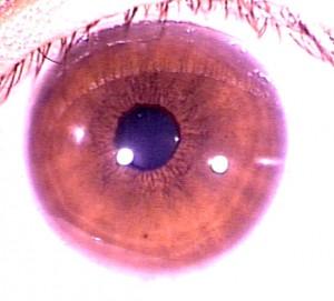 iridology pictures (2)