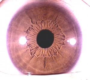 iridology pictures (22)