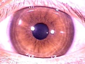 iridology pictures (26)