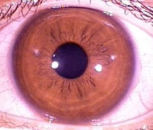 iridology pictures (27)