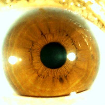 iridology pictures (28)