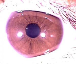 iridology pictures (3)