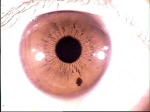iridology pictures (30)