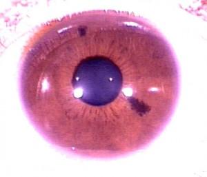 iridology pictures (32)