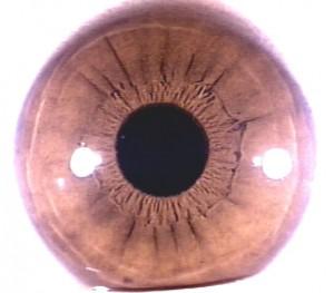 iridology pictures (35)