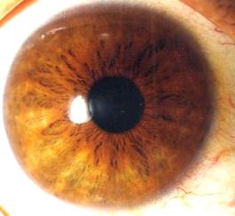 iridology pictures (37)