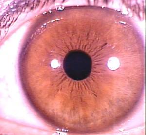 iridology pictures (39)