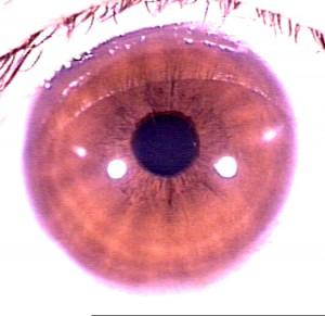 iridology pictures (4)