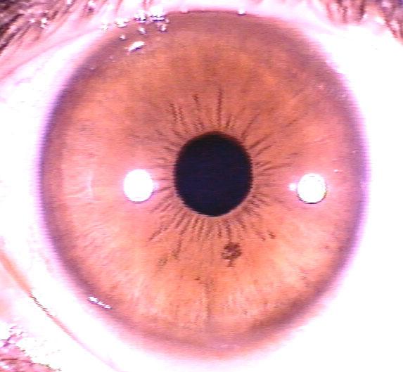 iridology pictures (40)