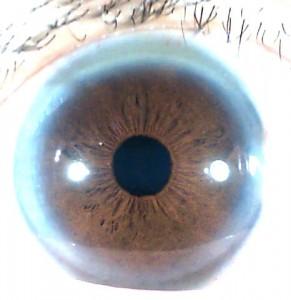 iridology pictures (43)