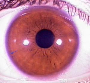 iridology pictures (45)