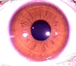 iridology pictures (46)