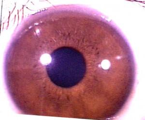 iridology pictures (48)