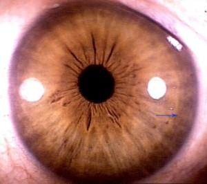 iridology pictures (49)