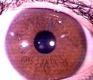 iridology pictures (5)
