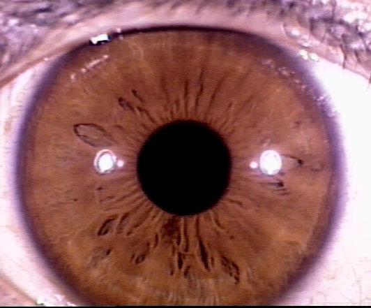 iridology pictures (50)