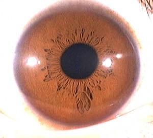 iridology pictures (52)