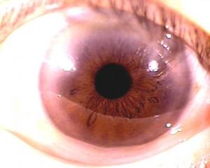 iridology pictures (54)