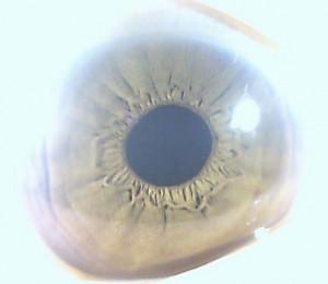 iridology pictures (56)
