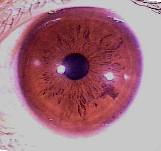 iridology pictures (8)